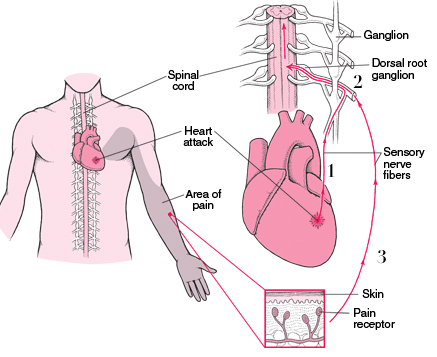 Heart Attack referred pain